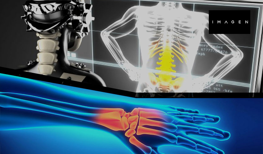ai detect wrist fractures
